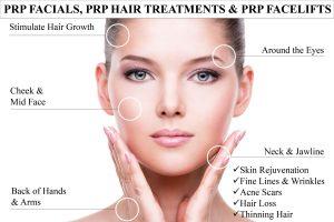 PRP Microneedling Facial in Central Alabama