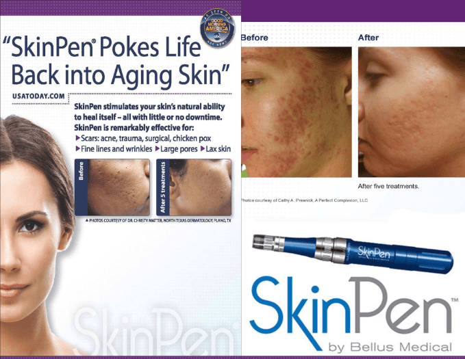 SkinPen Treatment at Alabama Vein Center