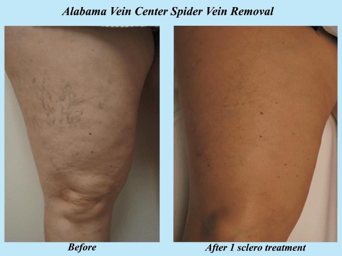 Spider Vein Treatments